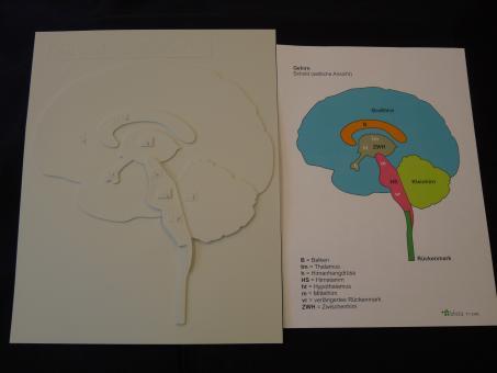Schnitt durch das Gehirn